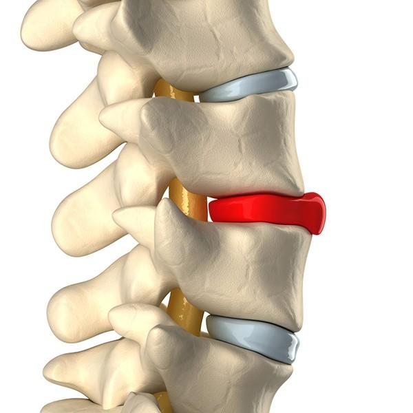 Berufshaftpflichtversicherung für HP-Osteopathie
